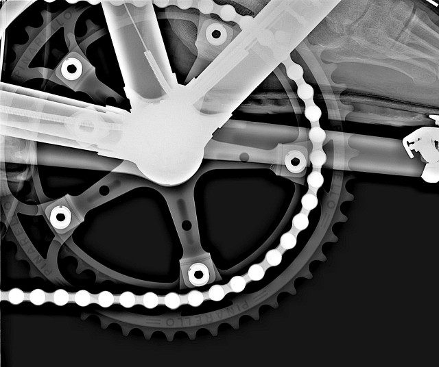 fixed-gear-roentgen-bild-3